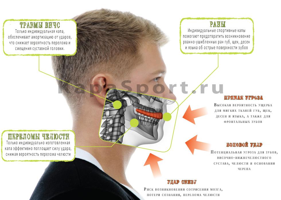 использование капы направления удара защита